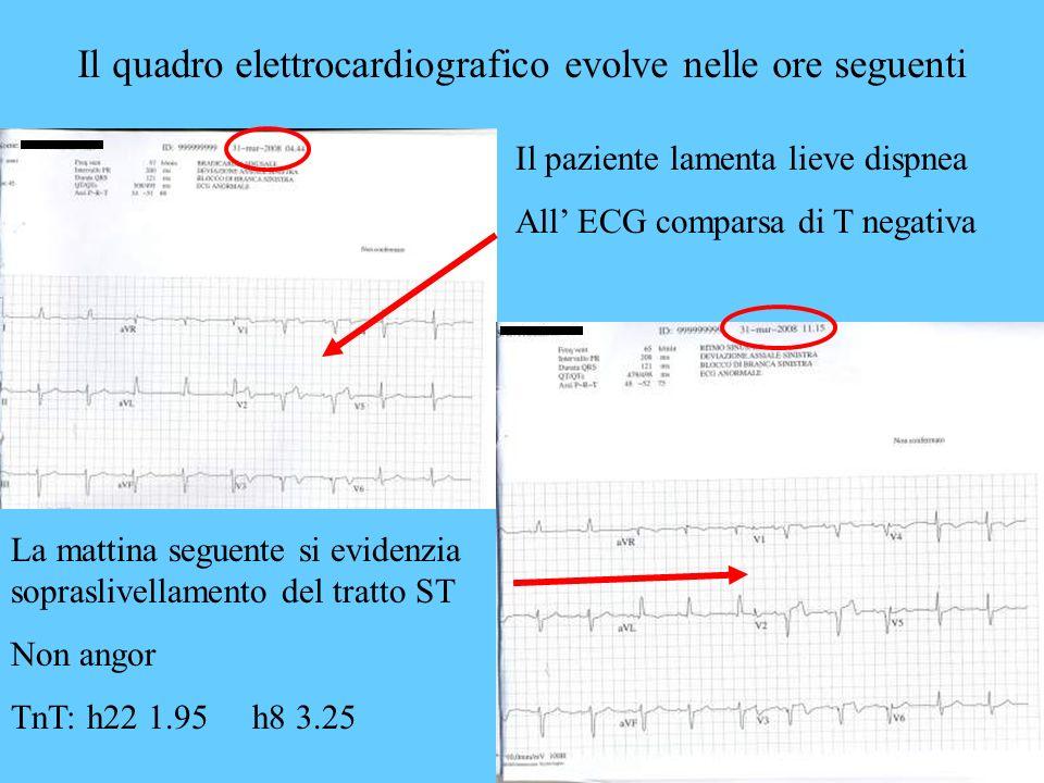 Il quadro elettrocardiografico evolve nelle ore seguenti La mattina seguente si evidenzia sopraslivellamento del tratto ST Non angor TnT: h22 1.95 h8