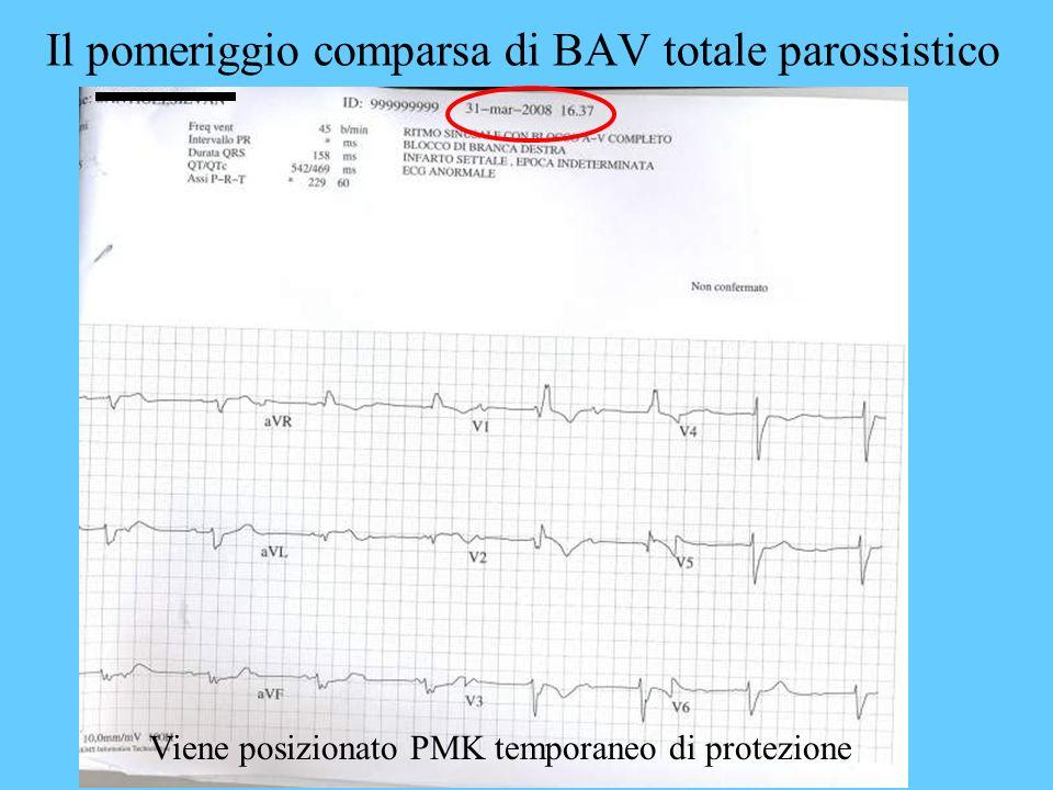 Il pomeriggio comparsa di BAV totale parossistico Viene posizionato PMK temporaneo di protezione