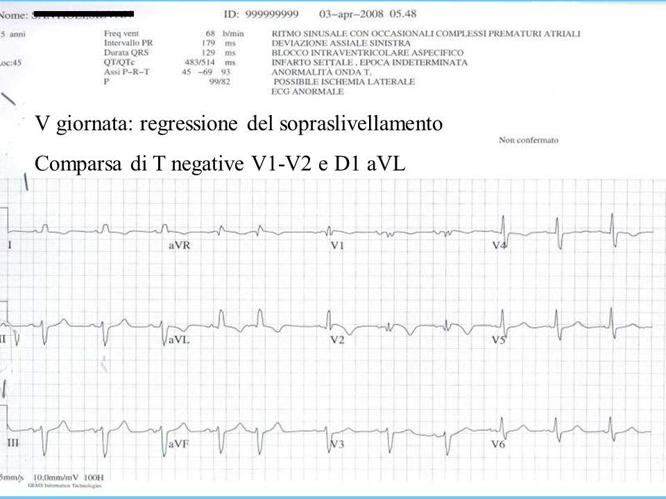 V giornata: regressione del sopraslivellamento Comparsa di T negative V1-V2 e D1 aVL