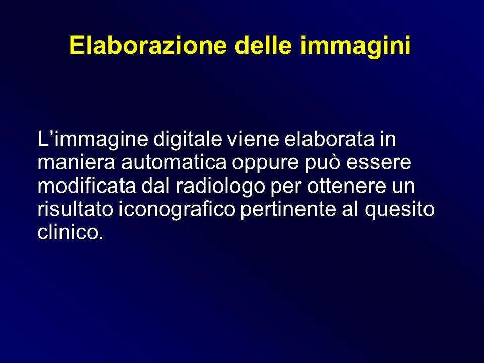 Limmagine digitale viene elaborata in maniera automatica oppure può essere modificata dal radiologo per ottenere un risultato iconografico pertinente