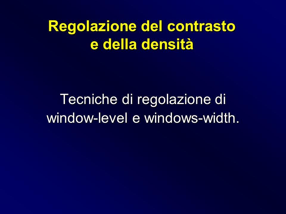 Tecniche di regolazione di window-level e windows-width. Regolazione del contrasto e della densità Regolazione del contrasto e della densità