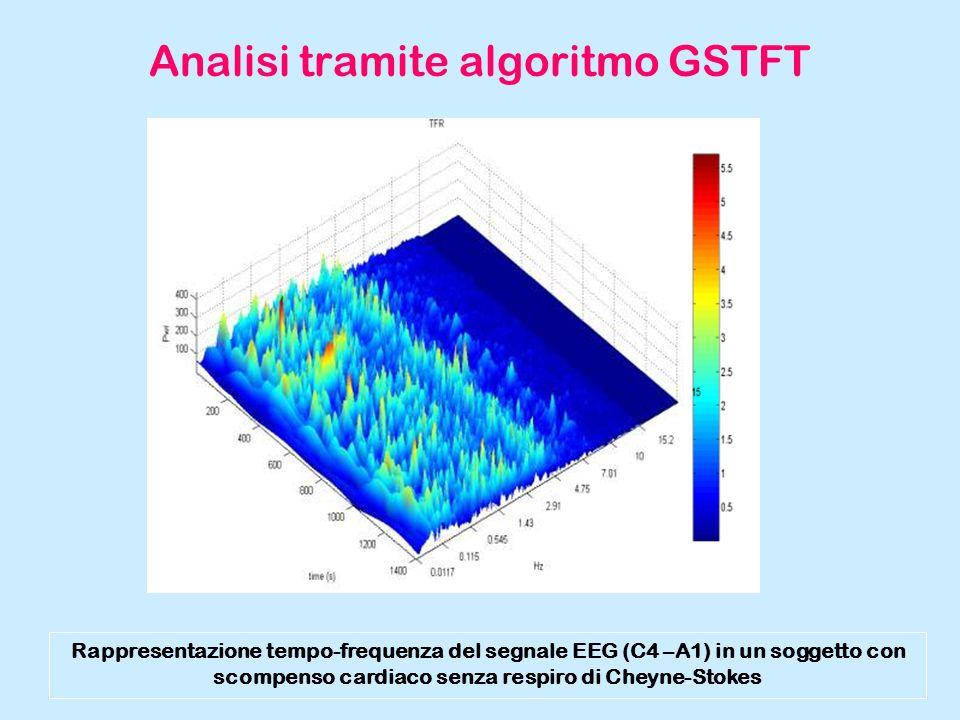 Analisi tramite algoritmo GSTFT Rappresentazione tempo-frequenza del segnale EEG (C4 –A1) in un soggetto con scompenso cardiaco senza respiro di Cheyn