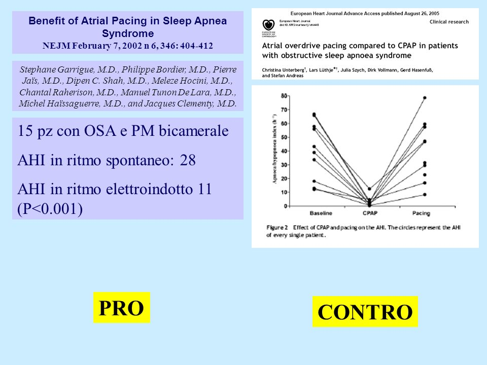 Benefit of Atrial Pacing in Sleep Apnea Syndrome NEJM February 7, 2002 n 6, 346: 404-412 Stephane Garrigue, M.D., Philippe Bordier, M.D., Pierre Jaïs,