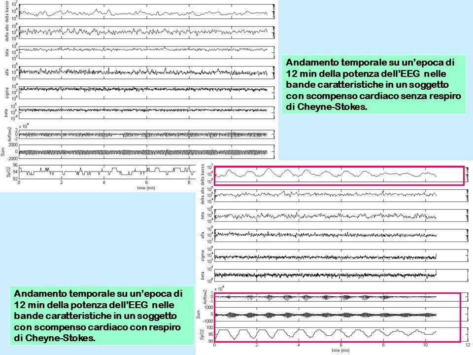 Andamento temporale su unepoca di 12 min della potenza dellEEG nelle bande caratteristiche in un soggetto con scompenso cardiaco senza respiro di Chey
