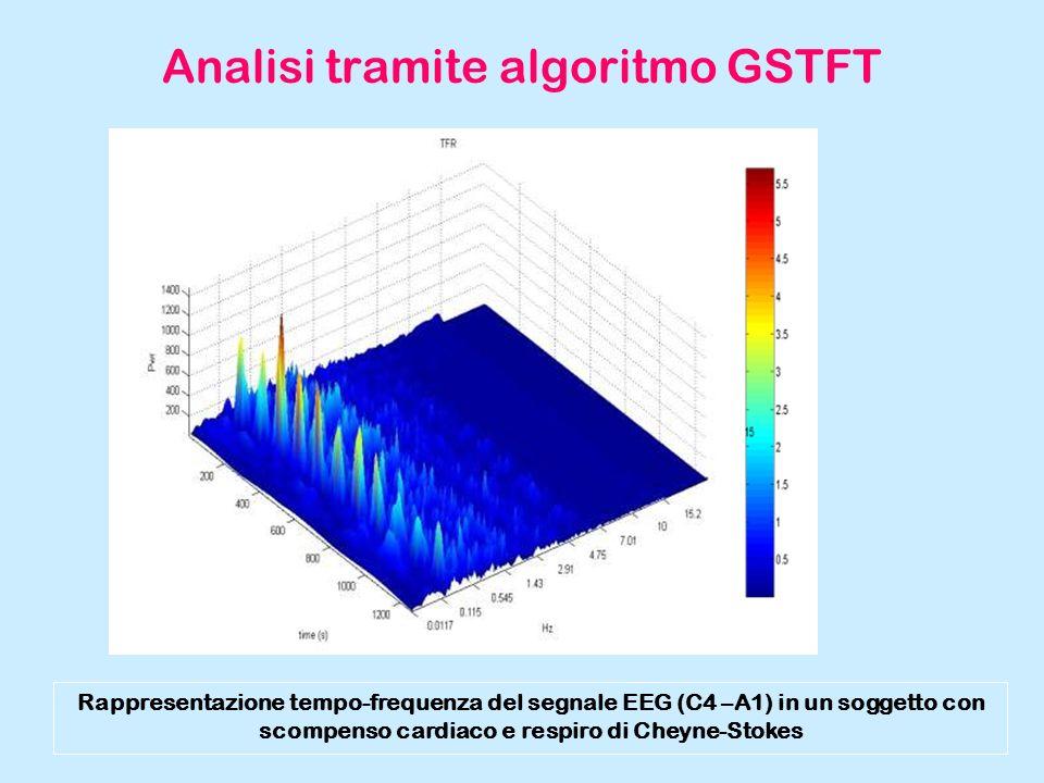 Analisi tramite algoritmo GSTFT Rappresentazione tempo-frequenza del segnale EEG (C4 –A1) in un soggetto con scompenso cardiaco e respiro di Cheyne-St