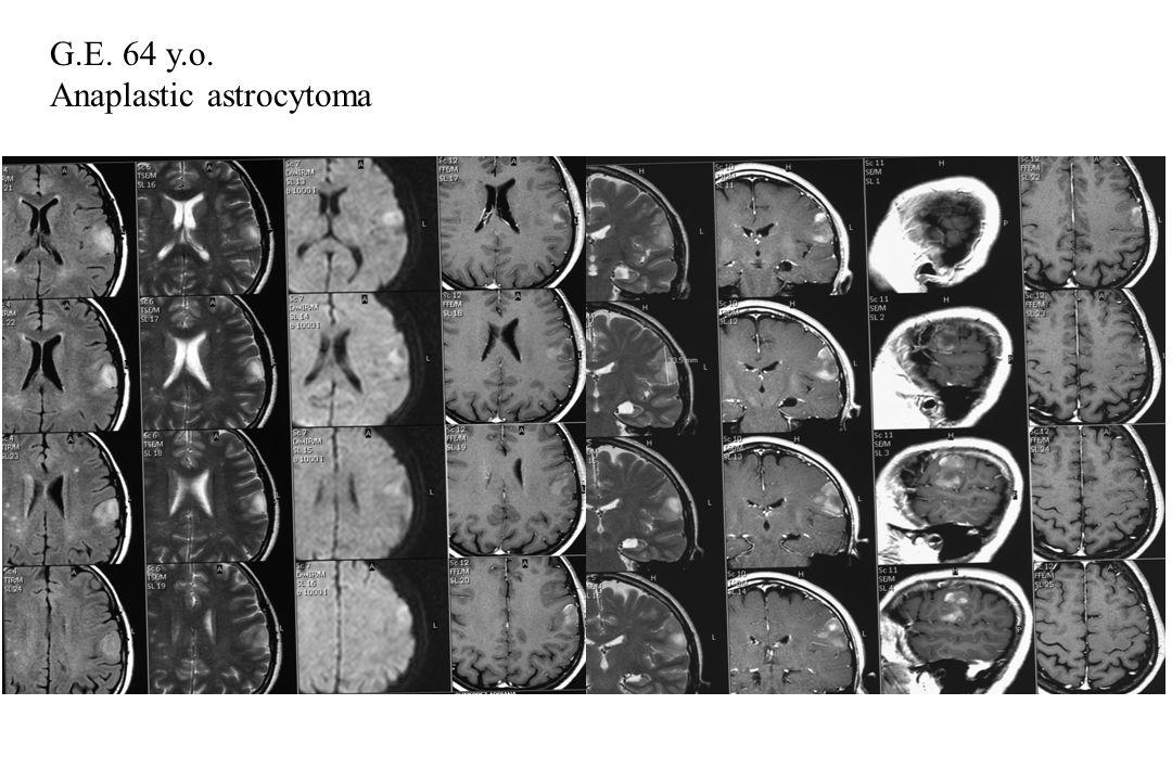 G.E. 64 y.o. Anaplastic astrocytoma