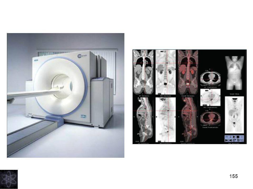 156 - Il 18F- FDG, iniettato per via endovenosa, si accumula e rimane intrappolato nelle cellule dell organismo in maniera proporzionale al loro fabbisogno metabolico e la mappa tridimensionale della sua distribuzione viene registrata dal tomografo PET.