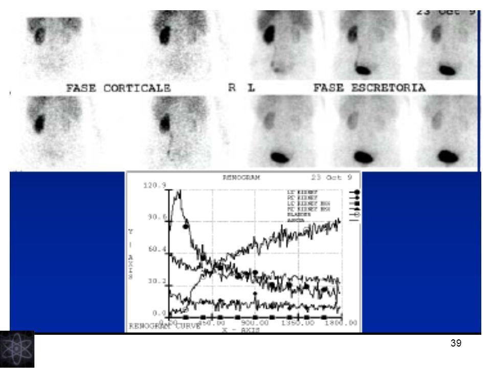 40 Scintigrafia renale sequenziale + test con diuretico (Lasix)