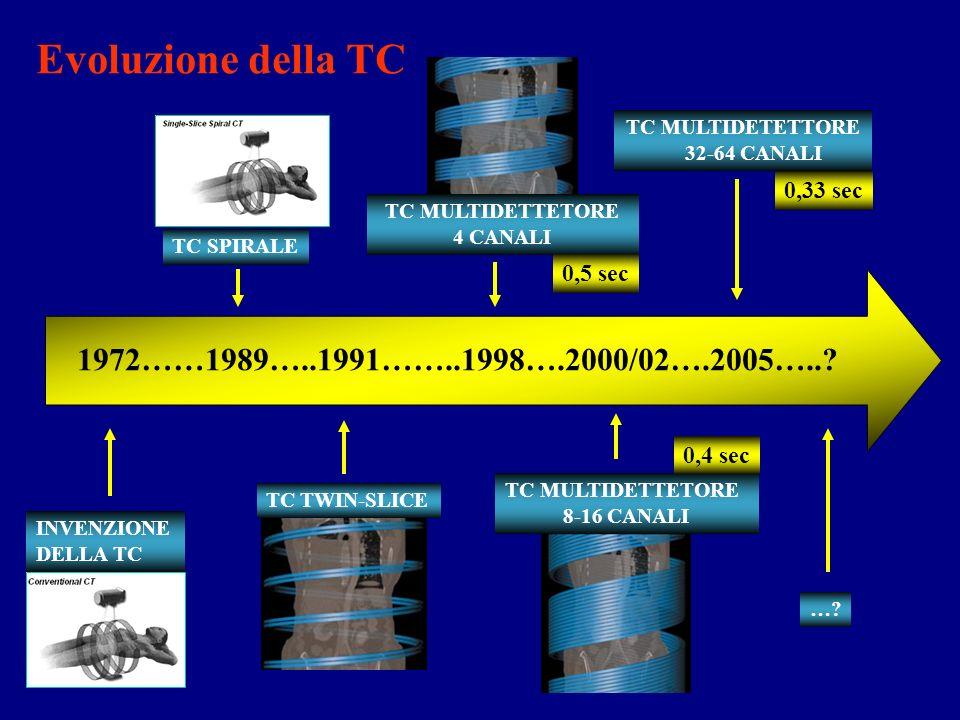 16 canali FPD Multislice: programmi di sviluppo 2 canali 4 canali 10 50 mm/sec 40 30 20 volume nellunità di tempo 64 canali
