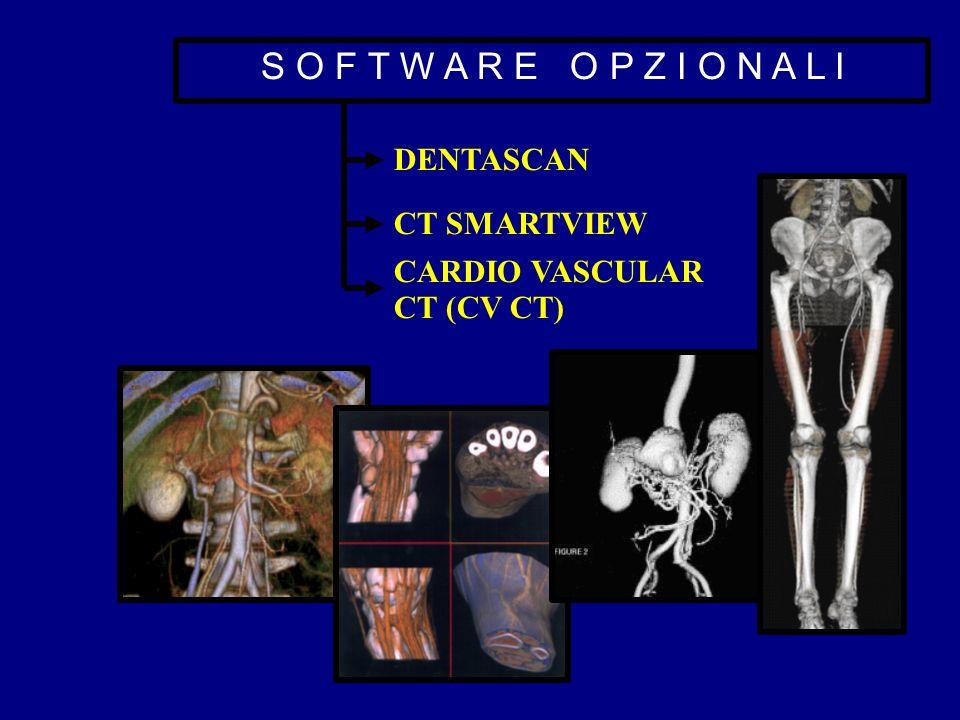 S O F T W A R E O P Z I O N A L I DENTASCAN CT SMARTVIEW CARDIO VASCULAR CT (CV CT)
