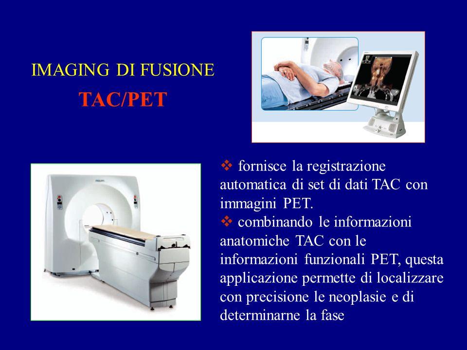 IMAGING DI FUSIONE TAC/PET fornisce la registrazione automatica di set di dati TAC con immagini PET.