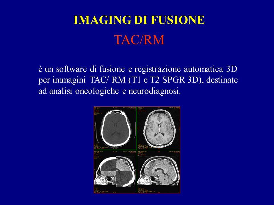IMAGING DI FUSIONE TAC/RM è un software di fusione e registrazione automatica 3D per immagini TAC/ RM (T1 e T2 SPGR 3D), destinate ad analisi oncologiche e neurodiagnosi.