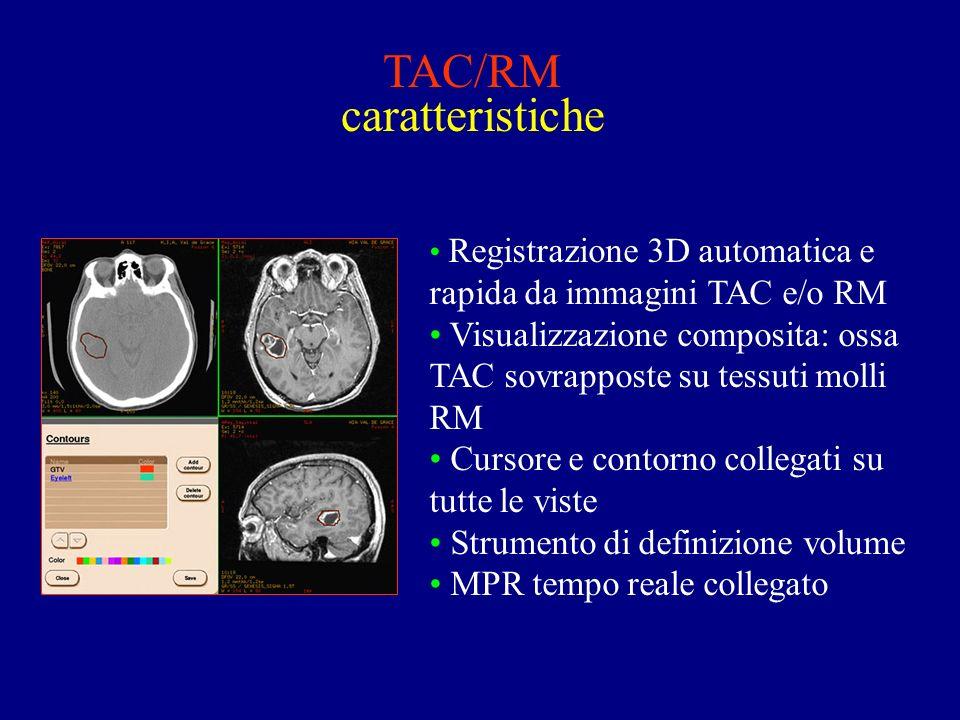 TAC/RM caratteristiche Registrazione 3D automatica e rapida da immagini TAC e/o RM Visualizzazione composita: ossa TAC sovrapposte su tessuti molli RM Cursore e contorno collegati su tutte le viste Strumento di definizione volume MPR tempo reale collegato