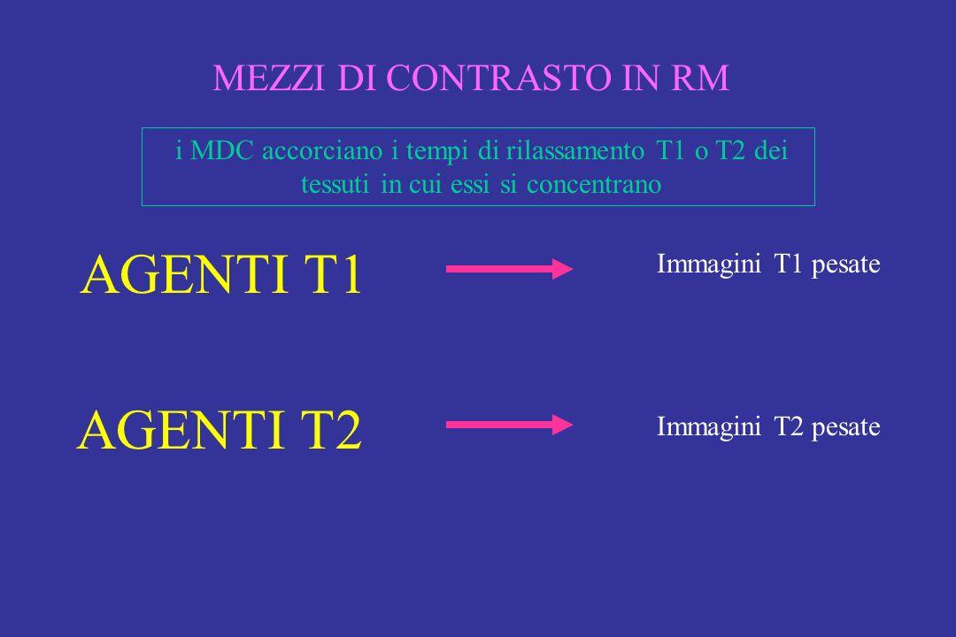 MEZZI DI CONTRASTO IN RM AGENTI T1 AGENTI T2 Immagini T1 pesate Immagini T2 pesate i MDC accorciano i tempi di rilassamento T1 o T2 dei tessuti in cui