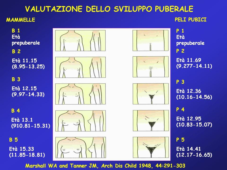 VALUTAZIONE DELLO SVILUPPO PUBERALE MAMMELLE PELI PUBICI B 1 Età prepuberale B 2 Età 11.15 (8.95-13.25) B 3 Età 12.15 (9.97-14.33) B 4 Età 13.1 (910.8