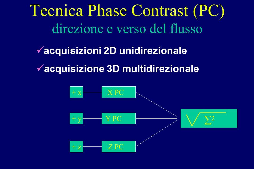 Tecnica Phase Contrast (PC) direzione e verso del flusso acquisizioni 2D unidirezionale acquisizione 3D multidirezionale + x + y + z X PC Y PC Z PC 2