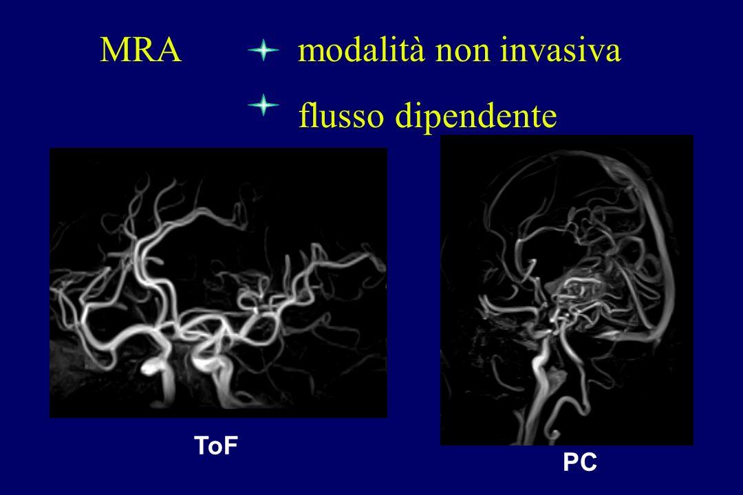 PC ToF MRA modalità non invasiva flusso dipendente
