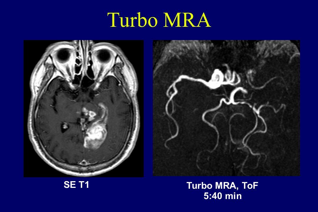 SE T1 Turbo MRA, ToF 5:40 min Turbo MRA