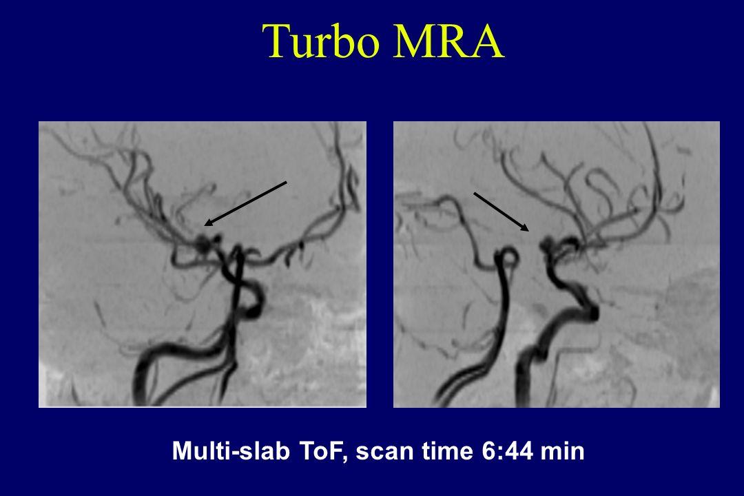 Multi-slab ToF, scan time 6:44 min Turbo MRA