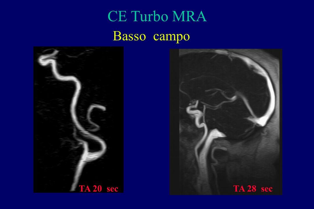 CE Turbo MRA Basso campo TA 28 secTA 20 sec