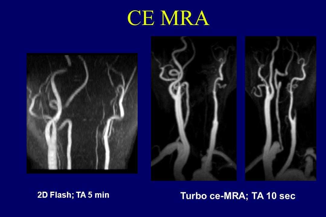 2D Flash; TA 5 min Turbo ce-MRA; TA 10 sec CE MRA