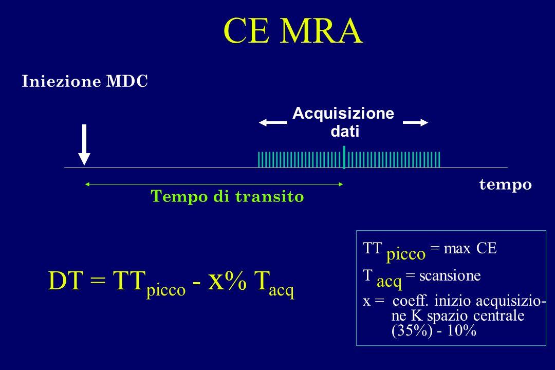 Iniezione MDC ||||||||||||||||||||||| | ||||||||||||||||||||||||| tempo Tempo di transito Acquisizione dati CE MRA DT = TT picco - x % T acq TT picco