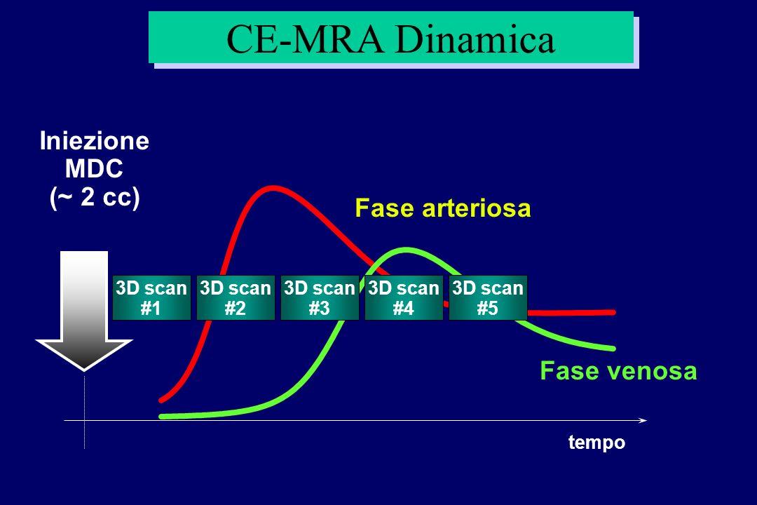 CE-MRA Dinamica tempo Fase venosa Fase arteriosa 3D scan #3 3D scan #1 3D scan #5 3D scan #2 3D scan #4 Iniezione MDC (~ 2 cc)