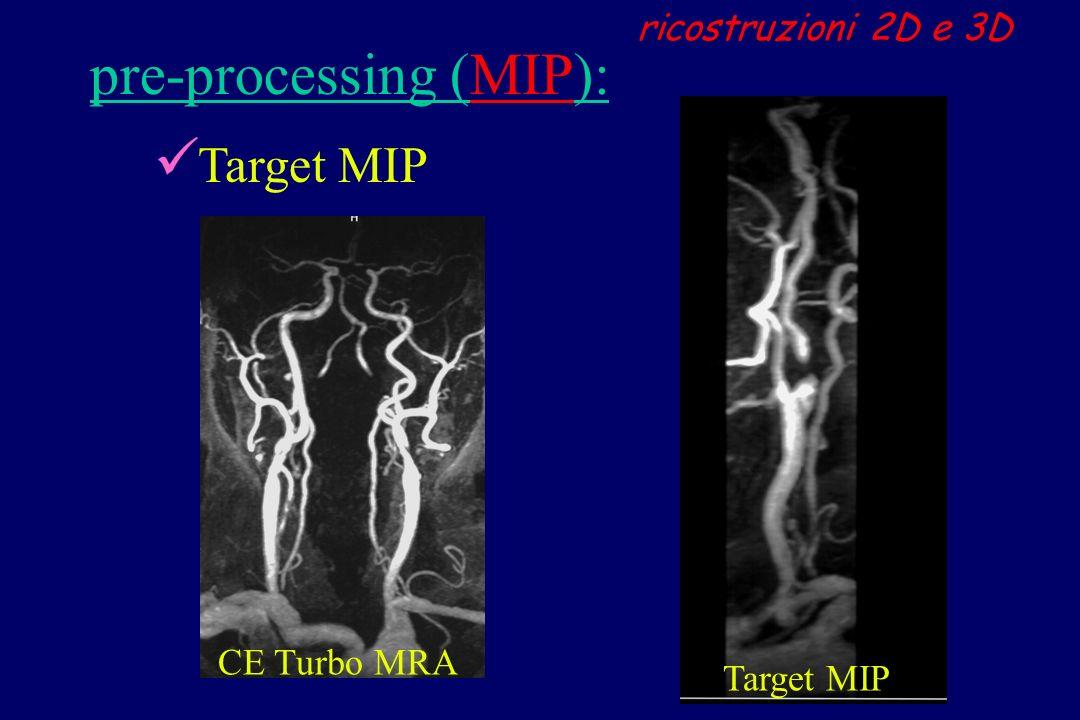 CE Turbo MRA Target MIP ricostruzioni 2D e 3D Target MIP pre-processing (MIP):