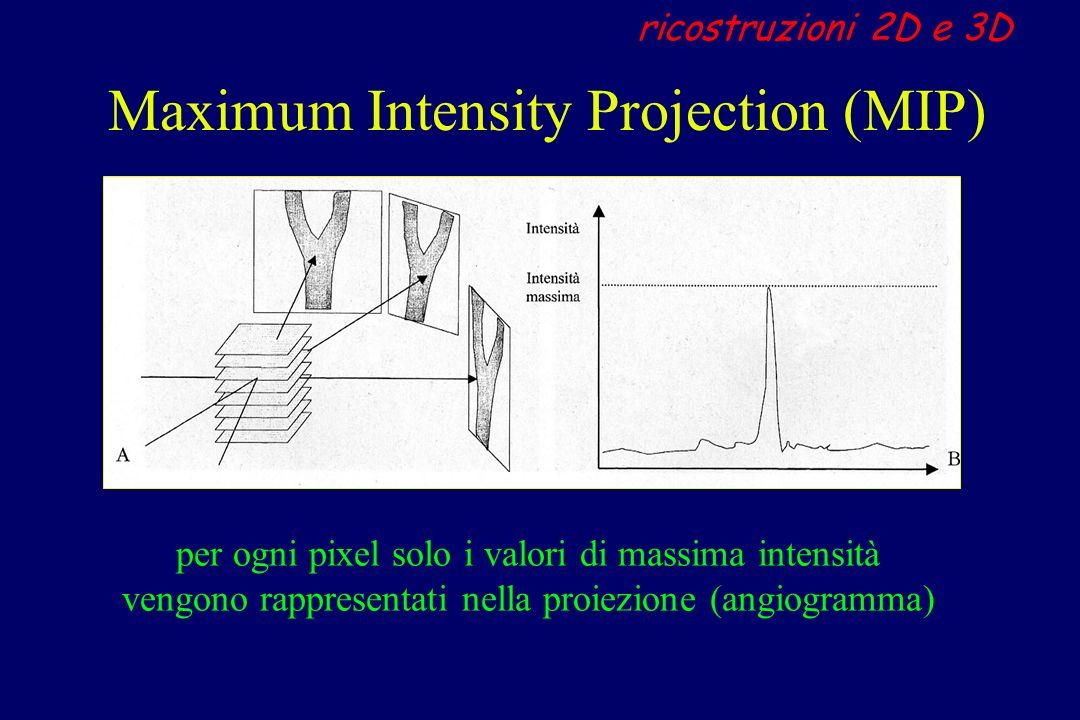 Maximum Intensity Projection (MIP) ricostruzioni 2D e 3D per ogni pixel solo i valori di massima intensità vengono rappresentati nella proiezione (ang