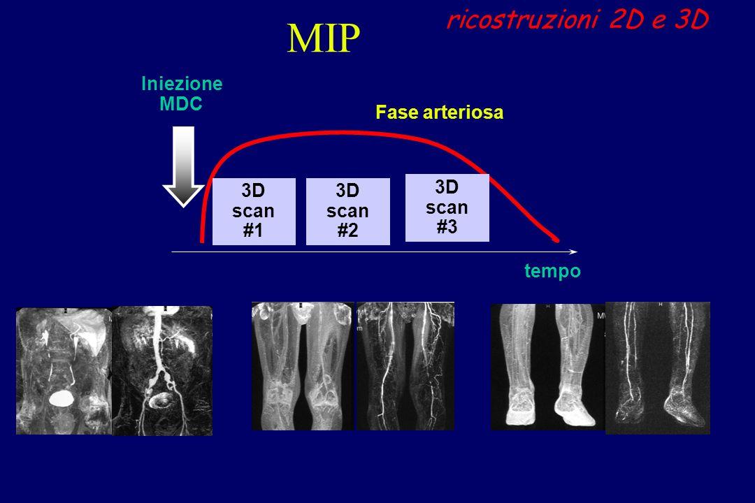 MIP ricostruzioni 2D e 3D tempo Fase arteriosa Iniezione MDC 3D scan #1 3D scan #3 3D scan #2