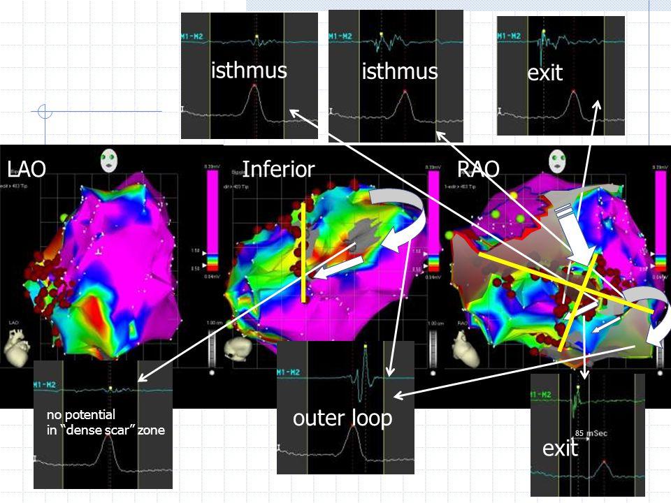LAOInferiorRAO outer loop exit isthmus exit 85 no potential in dense scar zone