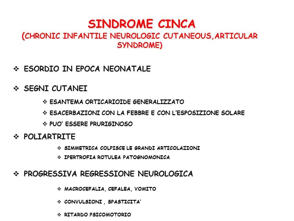 SINDROME CINCA ( CHRONIC INFANTILE NEUROLOGIC CUTANEOUS,ARTICULAR SYNDROME) SINDROME CINCA ( CHRONIC INFANTILE NEUROLOGIC CUTANEOUS,ARTICULAR SYNDROME