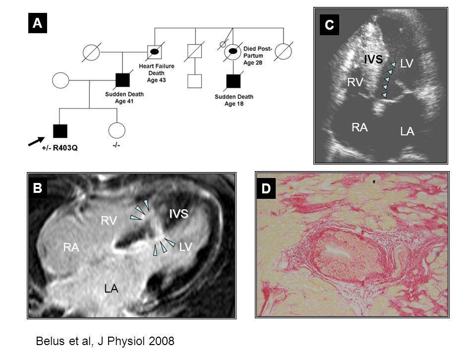 A B D C LV RV RA LA IVS IVS LV LA RA RV Belus et al, J Physiol 2008
