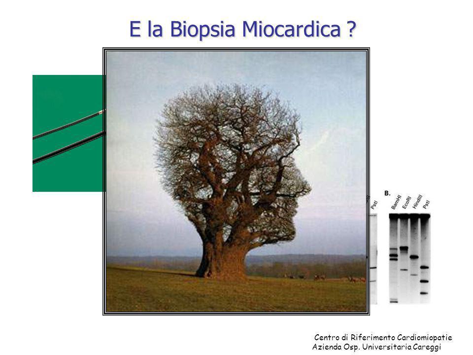 Centro di Riferimento Cardiomiopatie Azienda Osp. Universitaria Careggi E la Biopsia Miocardica ?