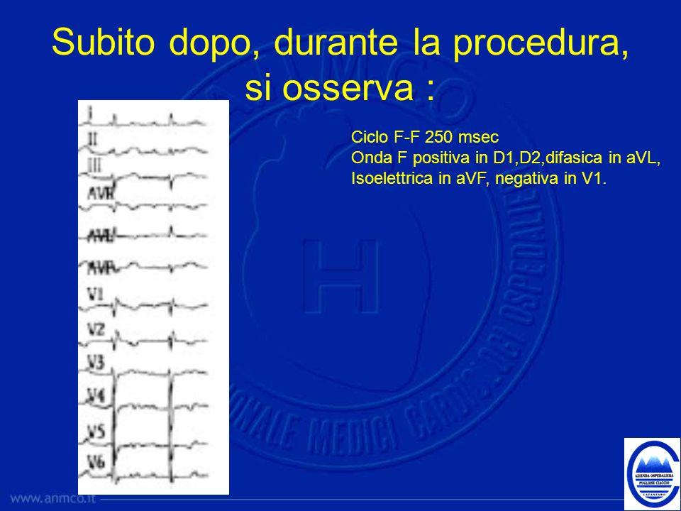 Subito dopo, durante la procedura, si osserva : Ciclo F-F 250 msec Onda F positiva in D1,D2,difasica in aVL, Isoelettrica in aVF, negativa in V1.