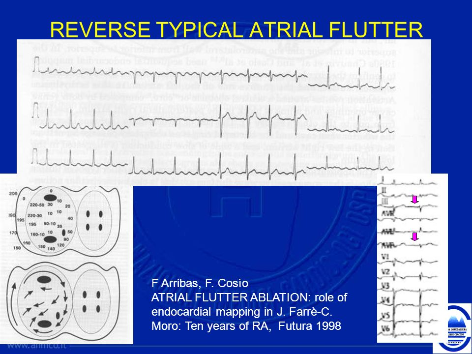 REVERSE TYPICAL ATRIAL FLUTTER F Arribas, F. Cosìo ATRIAL FLUTTER ABLATION: role of endocardial mapping in J. Farrè-C. Moro: Ten years of RA, Futura 1