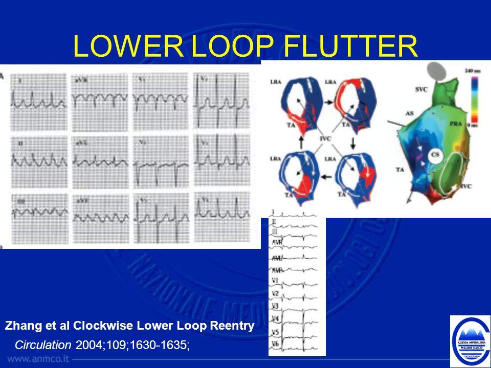 LOWER LOOP FLUTTER Zhang et al Clockwise Lower Loop Reentry Circulation 2004;109;1630-1635;