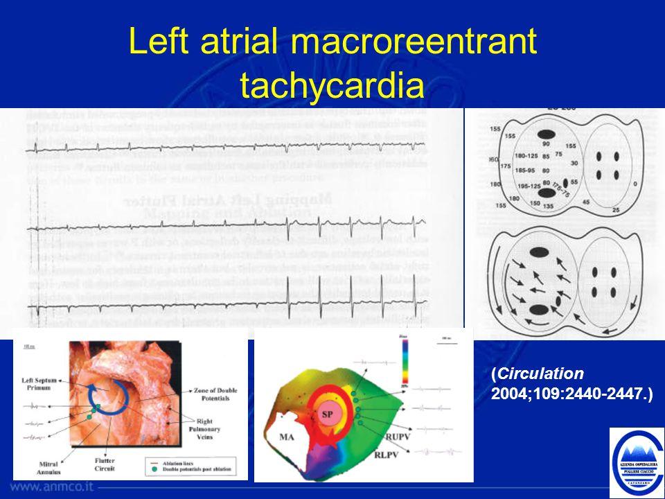 Left atrial macroreentrant tachycardia (Circulation 2004;109:2440-2447.)