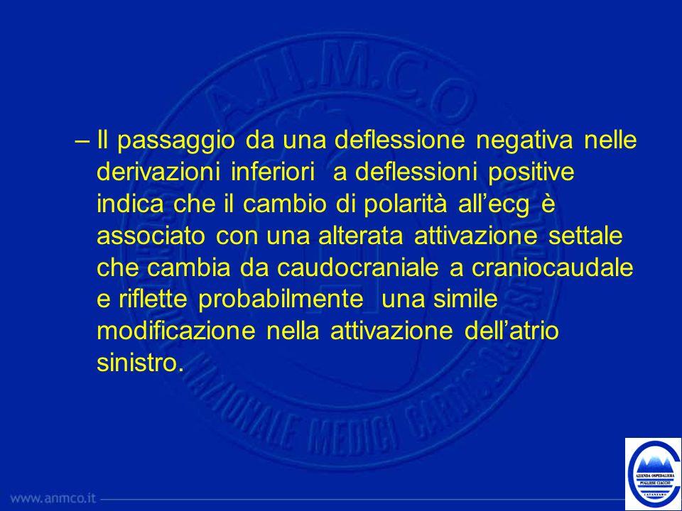 –Il passaggio da una deflessione negativa nelle derivazioni inferiori a deflessioni positive indica che il cambio di polarità allecg è associato con u