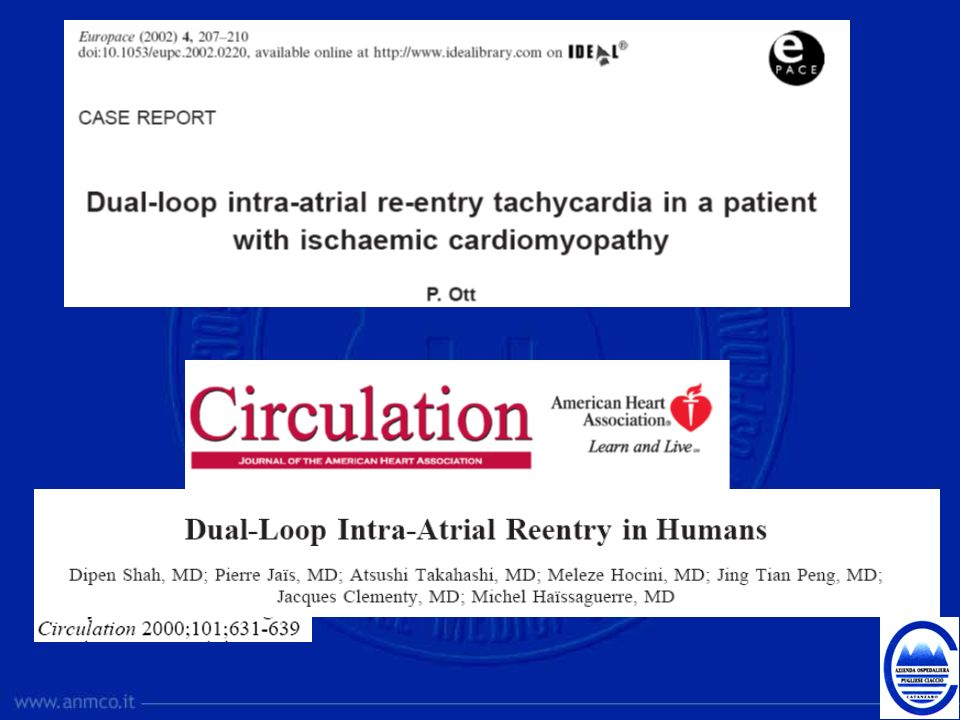 This article describes the characteristics of dual-loop, figure-8 atrial reentry.