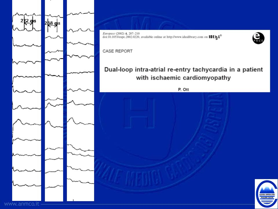 This is the first reported case of dual-loop intra- atrial re-entry tachycardia in a patient with ischaemic cardiomyopathy.
