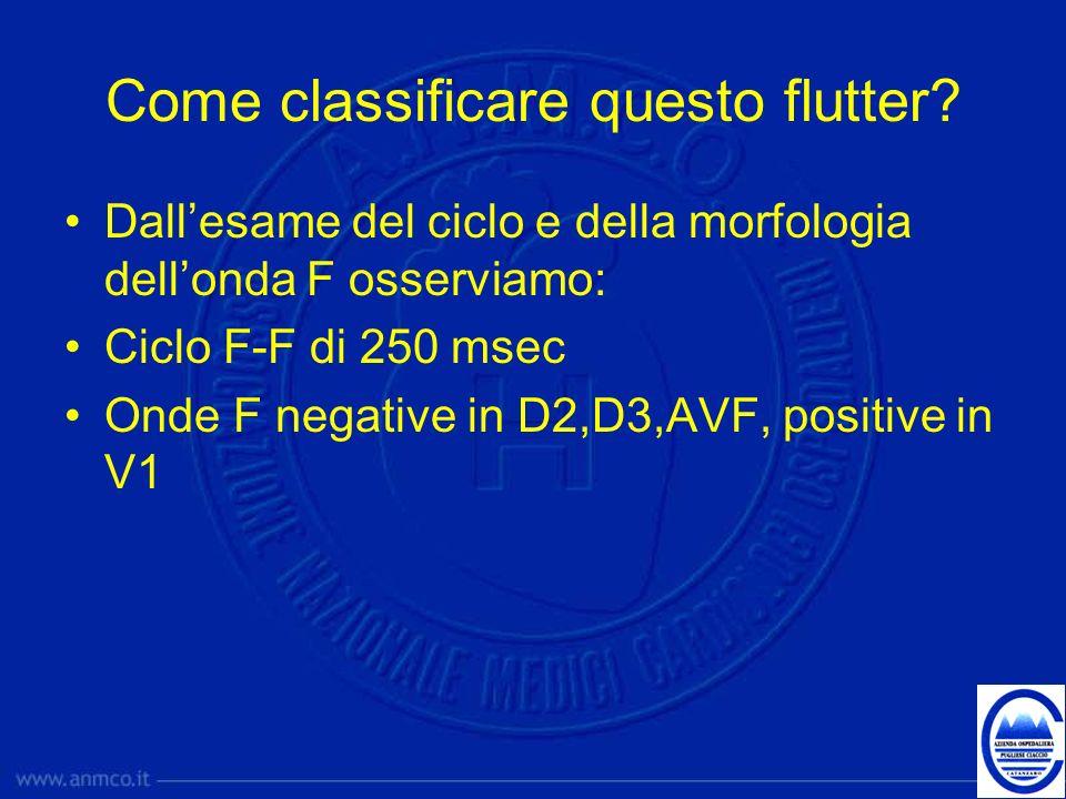 Come classificare questo flutter? Dallesame del ciclo e della morfologia dellonda F osserviamo: Ciclo F-F di 250 msec Onde F negative in D2,D3,AVF, po