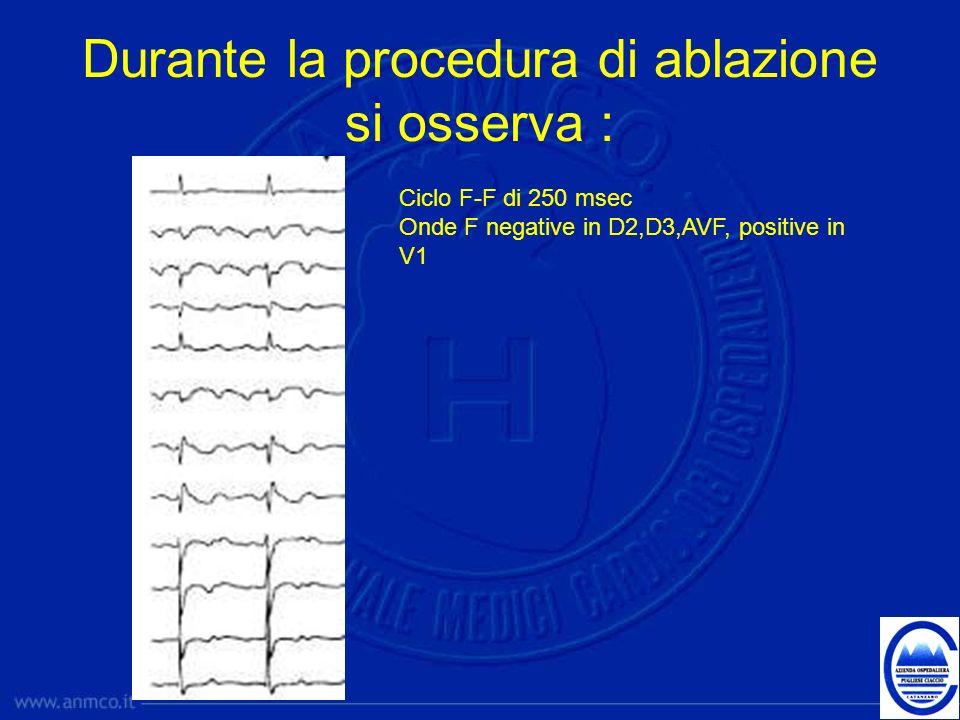 Durante la procedura di ablazione si osserva : Ciclo F-F di 250 msec Onde F negative in D2,D3,AVF, positive in V1