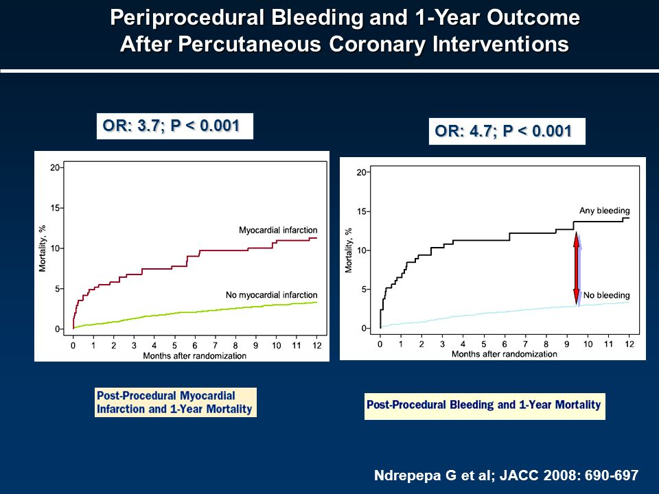 Ndrepepa G et al; JACC 2008: 690-697 Periprocedural Bleeding and 1-Year Outcome After Percutaneous Coronary Interventions OR: 3.7; P < 0.001 OR: 4.7;