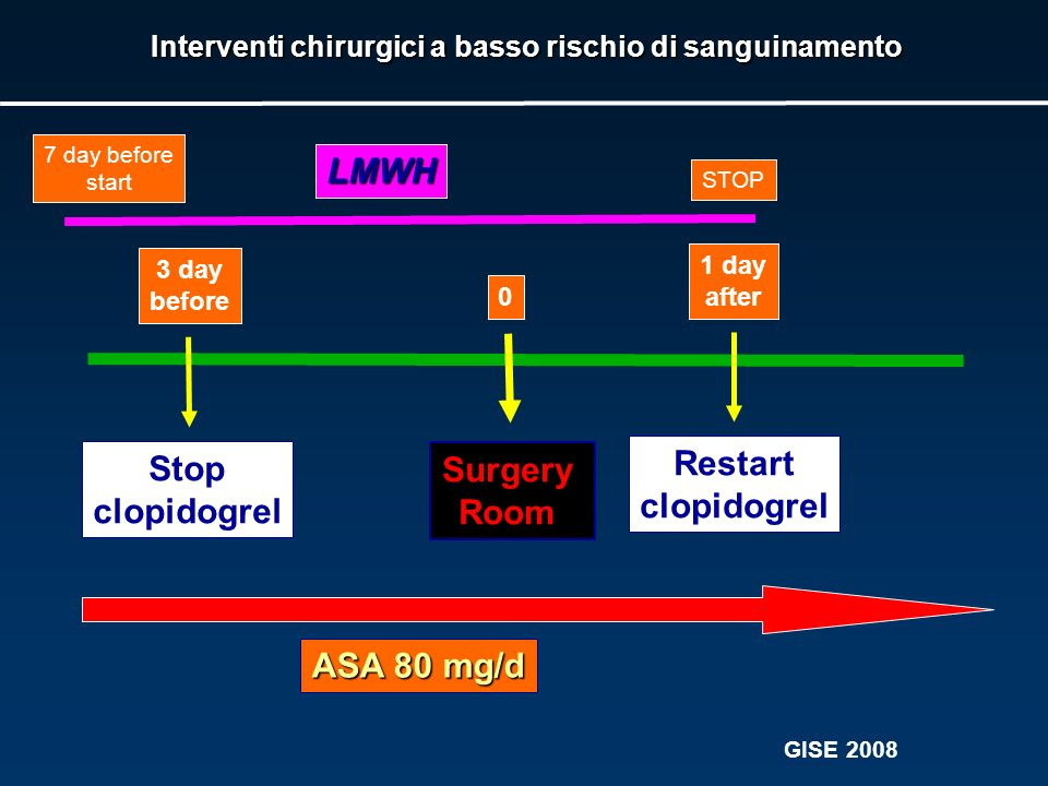 Surgery Room 3 day before Stop clopidogrel 1 day after Restart clopidogrel 0 ASA 80 mg/d Interventi chirurgici a basso rischio di sanguinamento LMWH 7