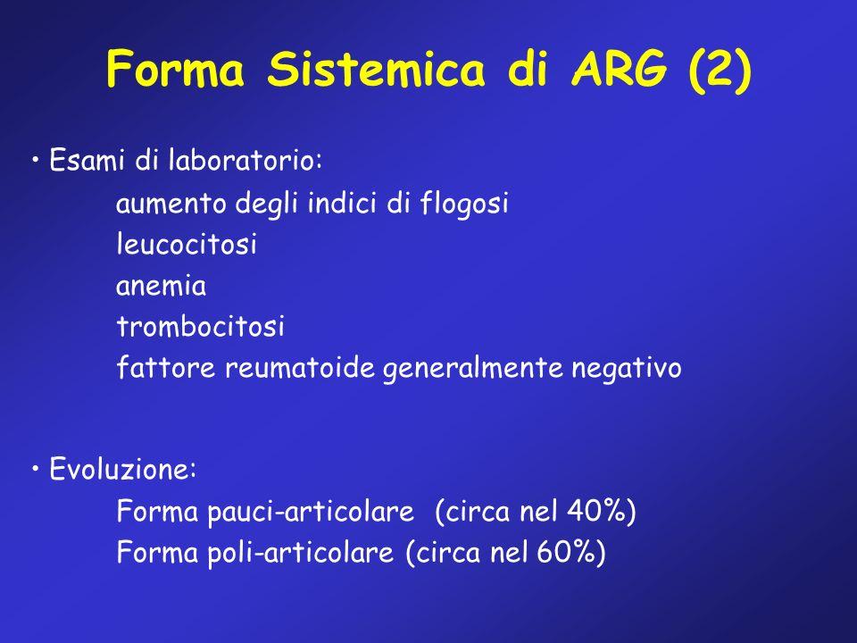 Forma Sistemica di ARG (2) Esami di laboratorio: aumento degli indici di flogosi leucocitosi anemia trombocitosi fattore reumatoide generalmente negat