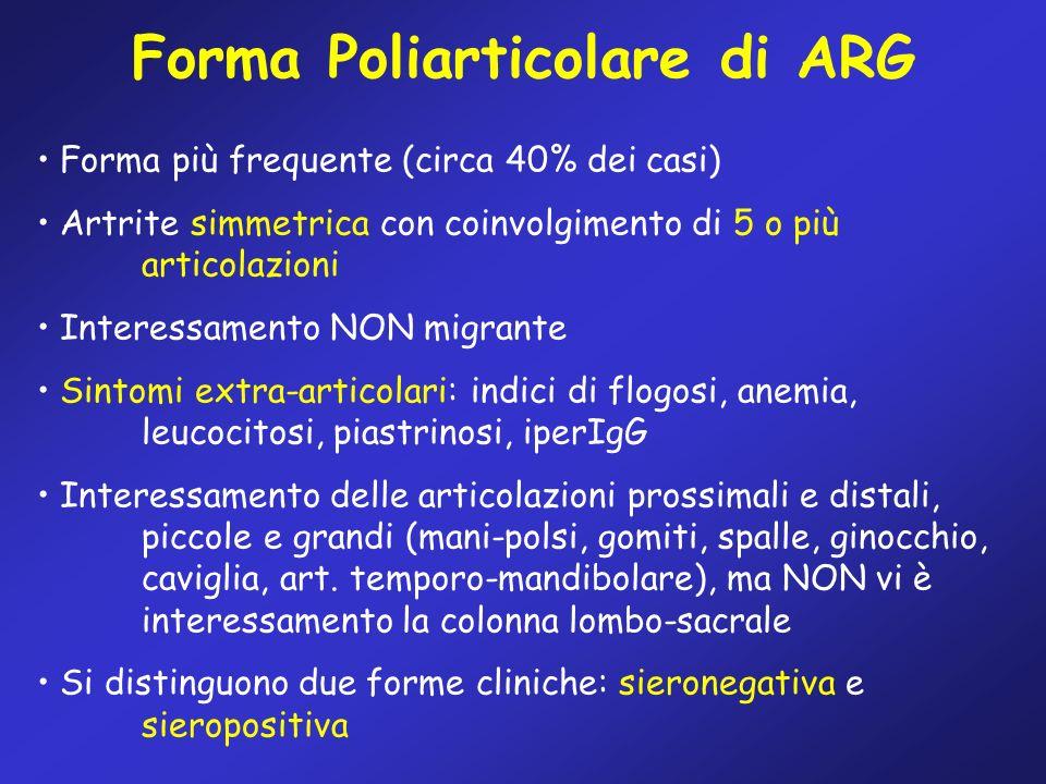 Forma Poliarticolare di ARG Forma più frequente (circa 40% dei casi) Artrite simmetrica con coinvolgimento di 5 o più articolazioni Interessamento NON