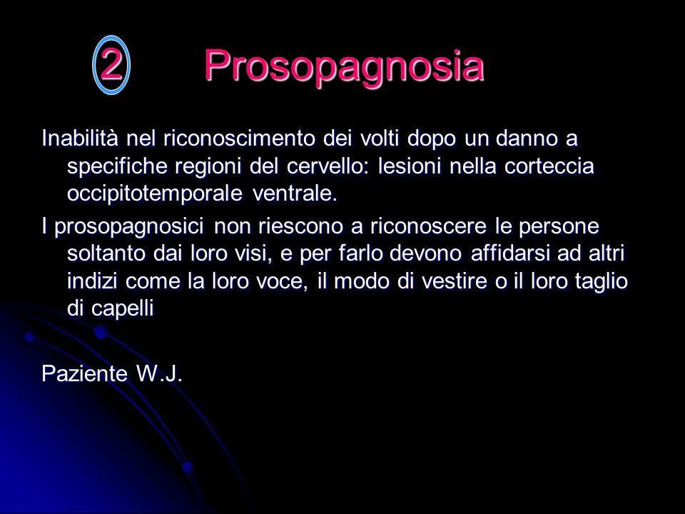 Prosopagnosia Inabilità nel riconoscimento dei volti dopo un danno a specifiche regioni del cervello: lesioni nella corteccia occipitotemporale ventra