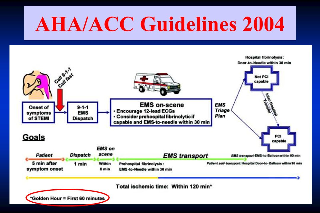 AHA/ACC Guidelines 2004