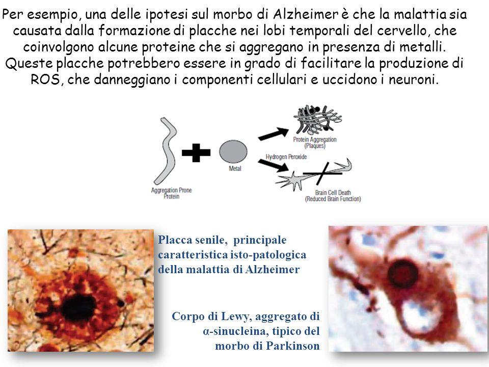 Per esempio, una delle ipotesi sul morbo di Alzheimer è che la malattia sia causata dalla formazione di placche nei lobi temporali del cervello, che coinvolgono alcune proteine che si aggregano in presenza di metalli.